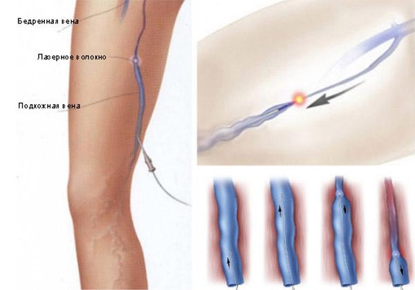 Tratamentul cu laser al varicelor bishkek