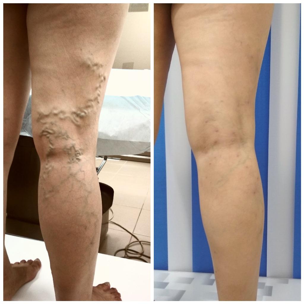tratamentul laser al varicosului evlk